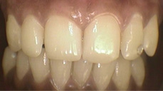 Laser Bleaching Services