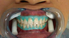 Teeth Bleaching in Mumbai