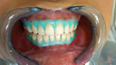 Dental Surgery in Mumbai